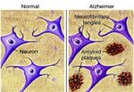 Новые программы обследований госпиталя Чунг Анг (май 2017), программа обследований на болезнь Альцгеймера и другие виды возрастной дименции